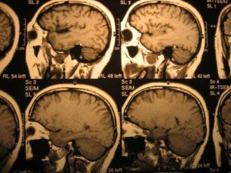 Sclerosi multipla e CCSVI: studio italiano conferma la teoria di Zamboni