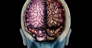 Alzheimer, scoperta molecola che blocca la malattia nei topi