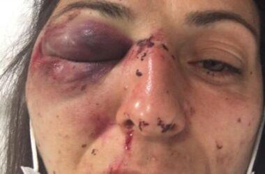 la polizia ha ferito gravemente un'attivista No Tav